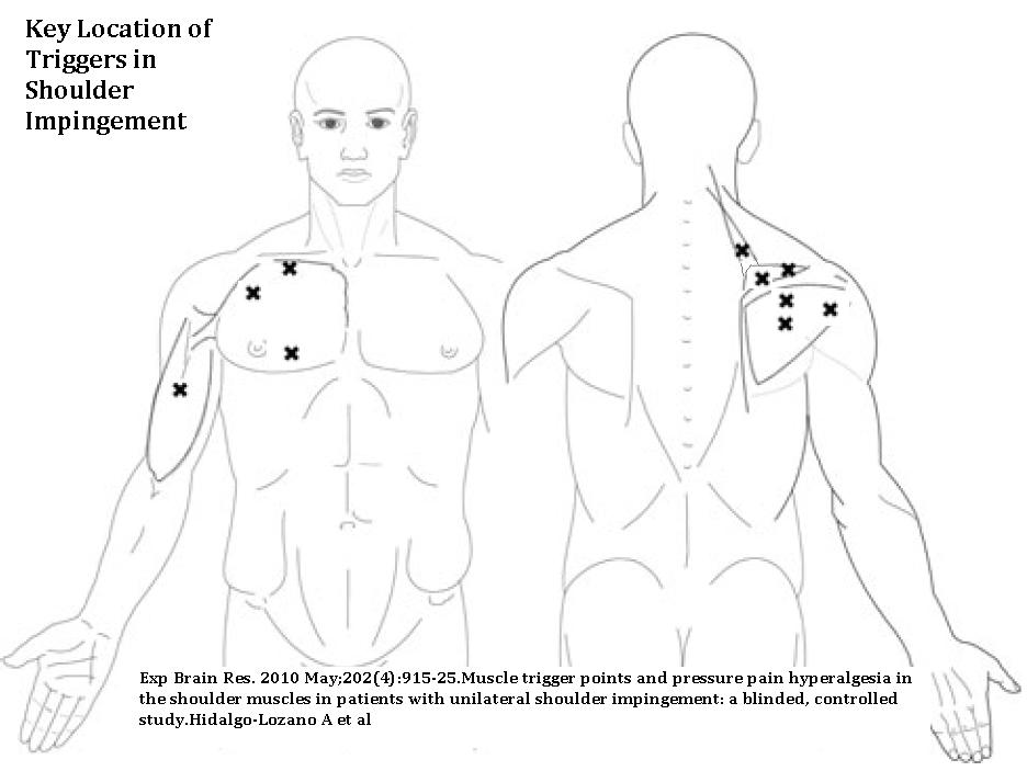 Shoulder Impingement Much More Than Rotator Cuff New Treatment