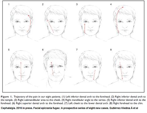 Facial epicrania fugax