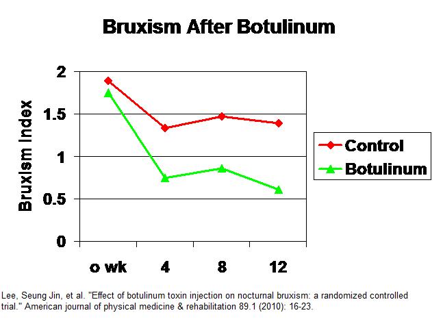 botulinum_bruxism