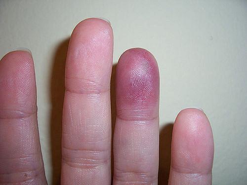 bruise_finger