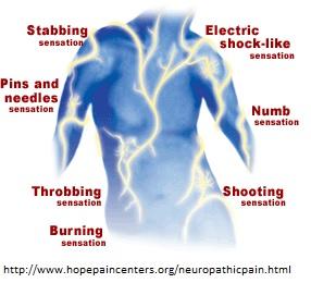 neuropathicp