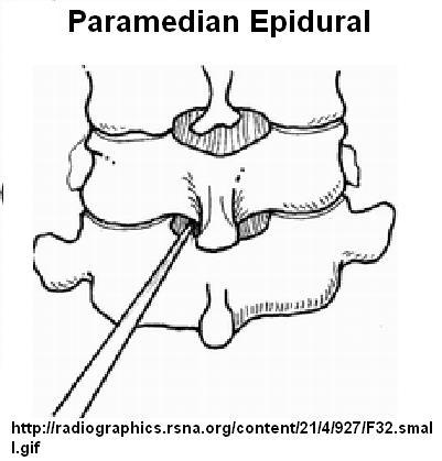 Bildresultat för spinal anesthesia