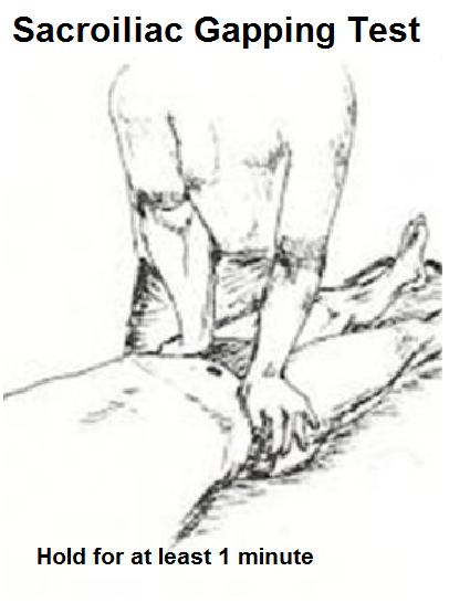 sacroiliac gapping