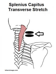 splenius stretch
