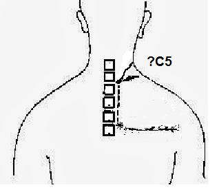 t5syndrome